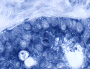 Colon cancer specimen, photographed at 40X. This sample is positive for miR-21 (indicated in blue).