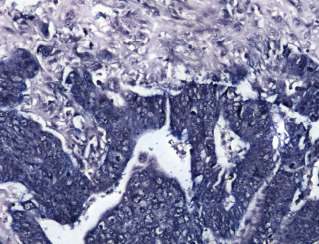 colorectal cancer samples micrograph