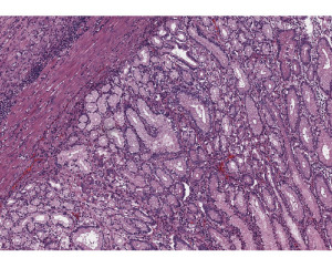 Sample from an esopho-gastrectomy, of mucinous adenocarcinoma, gastroesophageal junction.